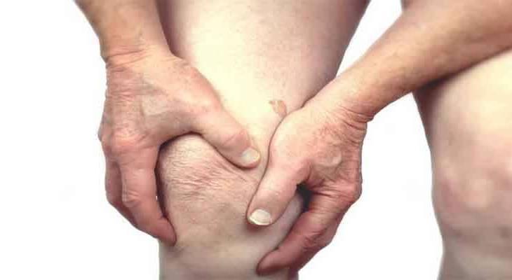 ARTHRITIS CAUSES AND SYMPTOMS