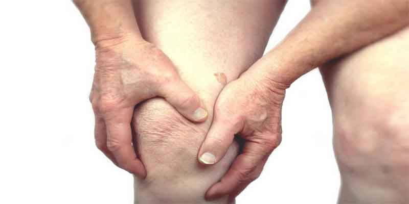 ARTHRITIS CAUSES AND SYMPTOMS