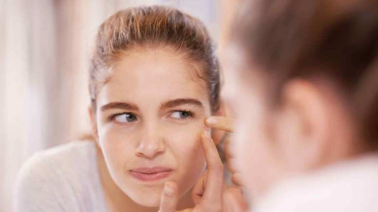 How can pimples affect your personality