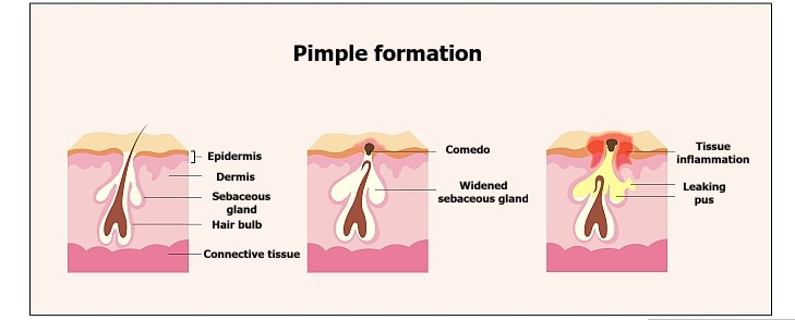 Why do we get pimples