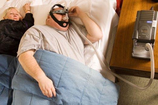 obesity sleepapnea